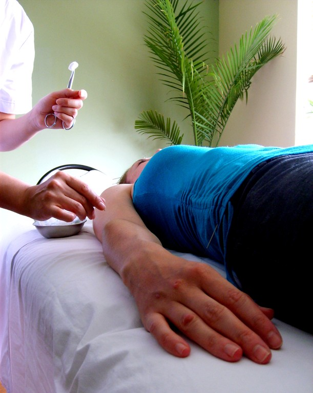 acupuncture for fertility and pain relief